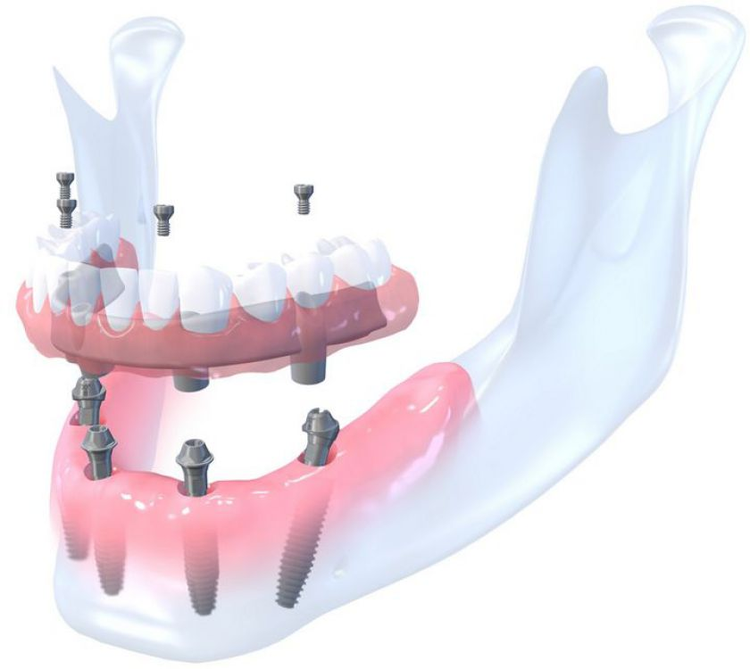 Vietoj auksinių dantų - neribotos implantacijos galimybės