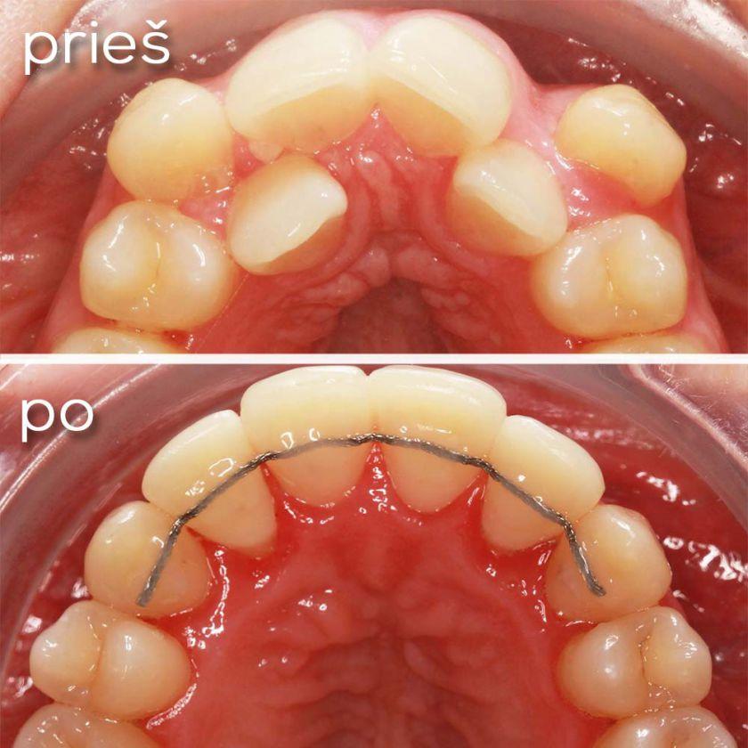 Kreivi dantys: kodėl juos būtina tiesinti?