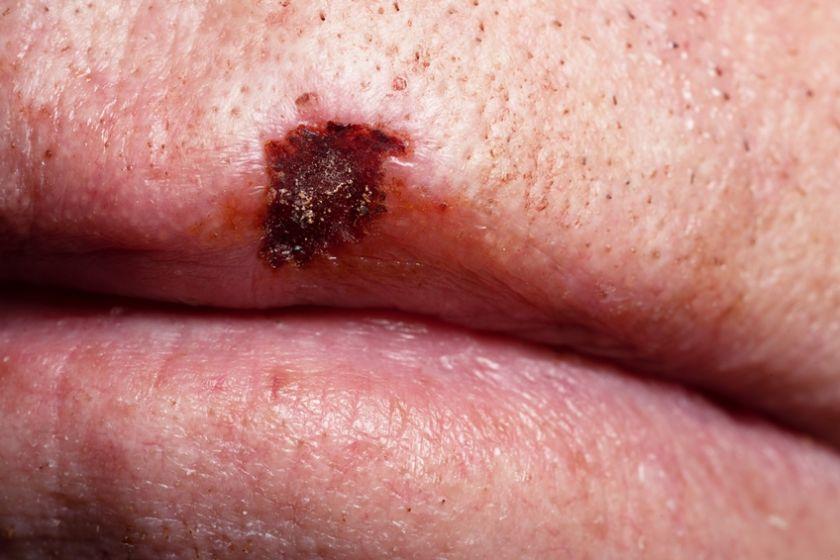Burnos vėžys: retas, bet mirtinai pavojingas