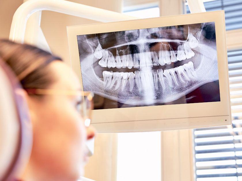 Ką pasirinkti: gydyti kanalus ar šalinti dantį?