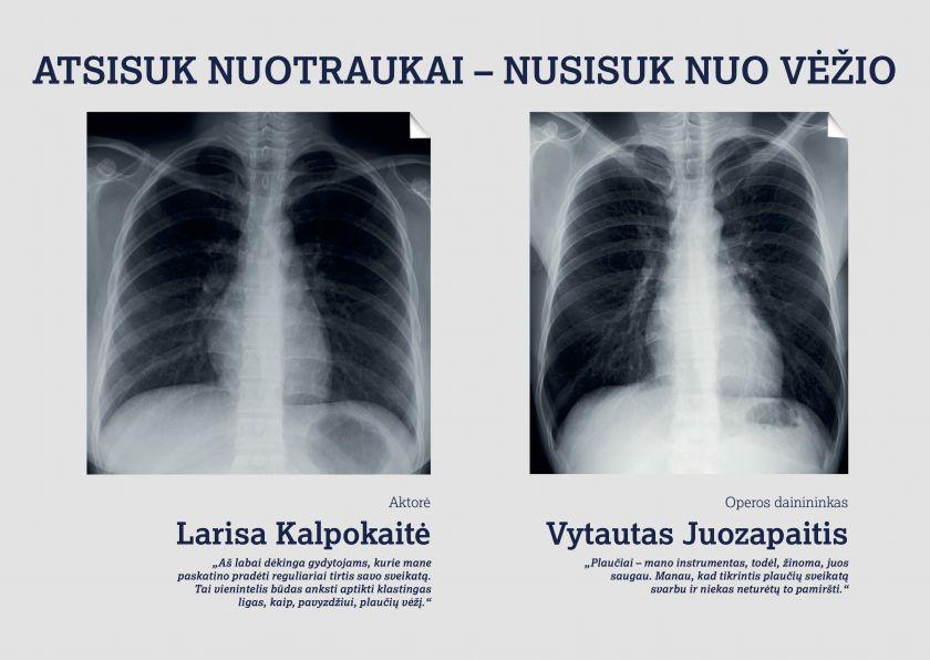 Vengdami gydytojų priekaištų dėl rūkymo, nepasinaudojame ir galimybe anksti aptikti ligą